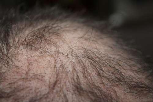 Hair Man Hair Loss Head