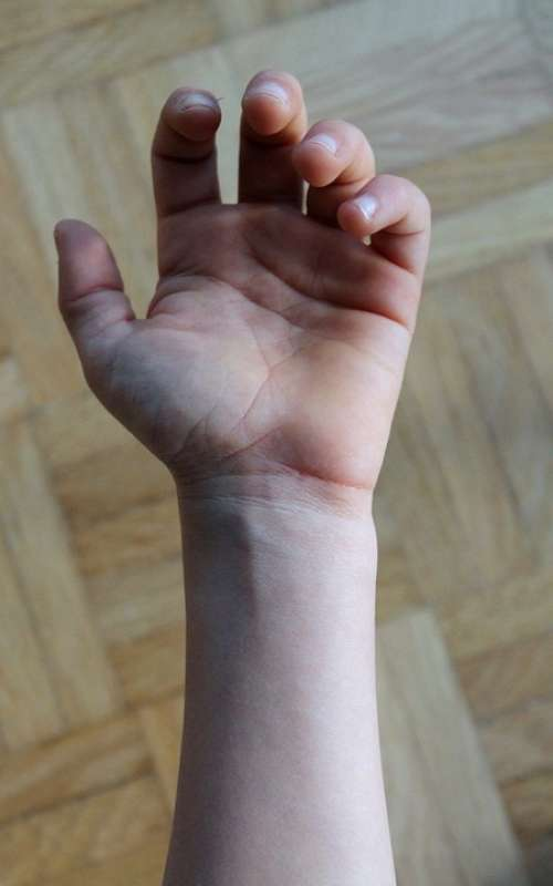 Hand Fingers Veins Palm