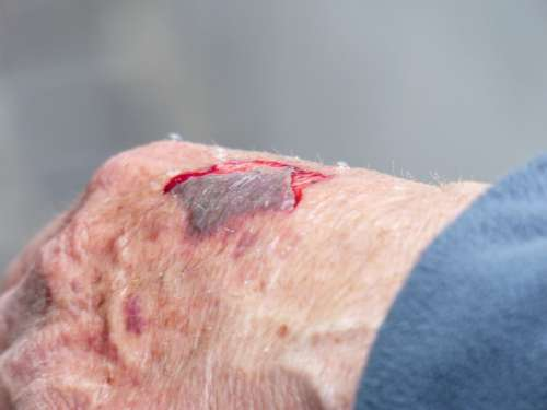 Hand Injury Wound Blood Crack Bloody Wounding
