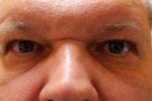Man Eyes Facial Expression Face Human