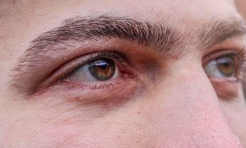 Eye Human Face View Iris Pupil Watch Shining