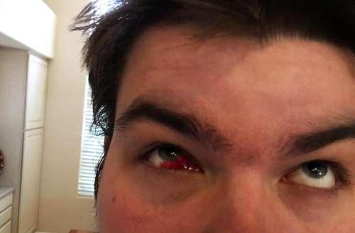 broken blood vessel eye eyes blood bloody