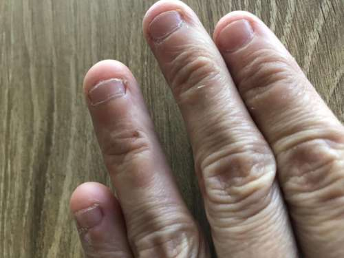 nail biting biting nails nails fingers ugly fingers