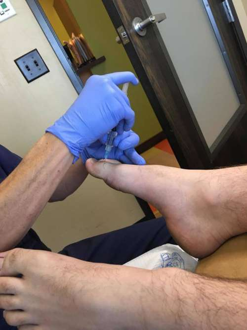 needle shot hypodermic foot toe