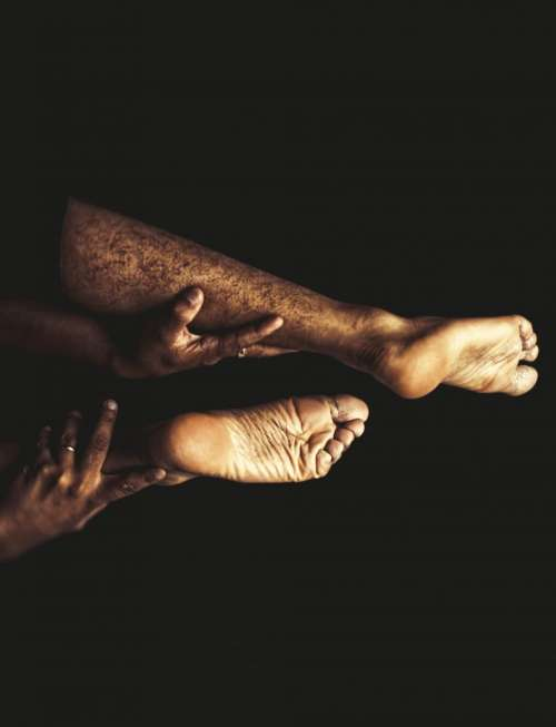 palm feet hands ring finger